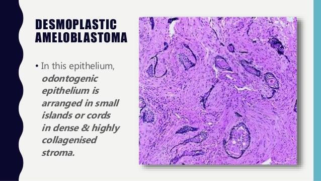 Ameloblastoma (Odontogenic Tumor) Oral Pathology