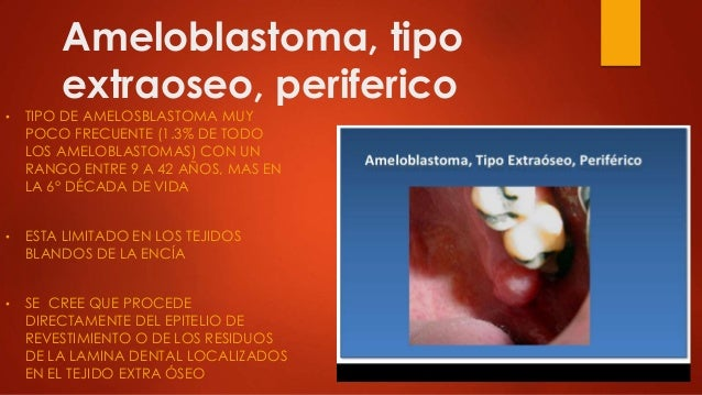 ameloblastoma ppt