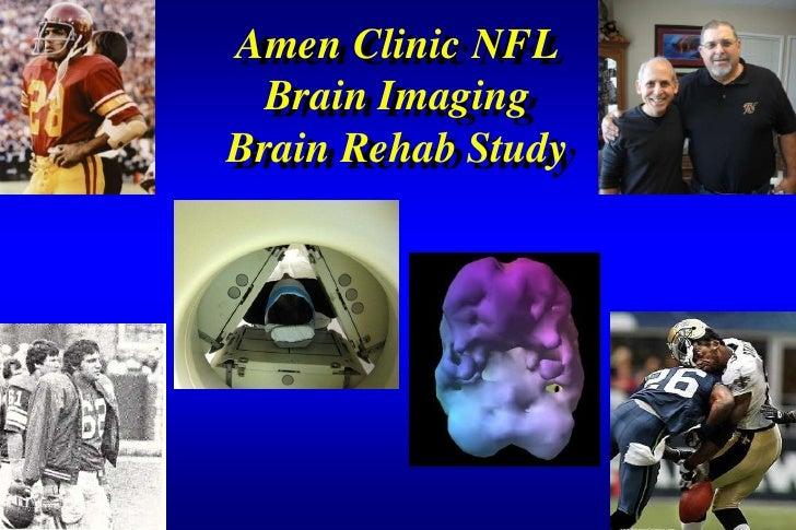 Amen Clinic NFL  Brain ImagingBrain Rehab Study