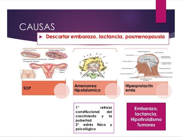 Causas amenorrea sin embarazo pdf995