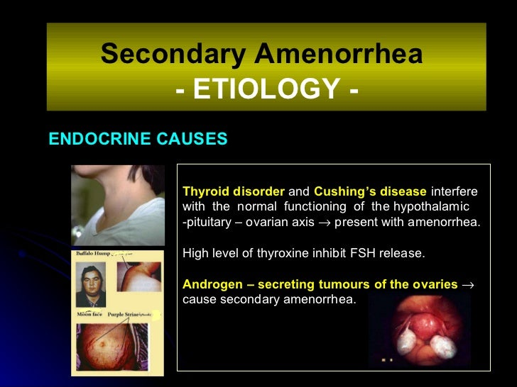 ENDOCRINE CAUSES Secondary Amenorrhea   - ETIOLOGY - Thyroid disorder  and  Cushing's disease  interfere with  the  normal...