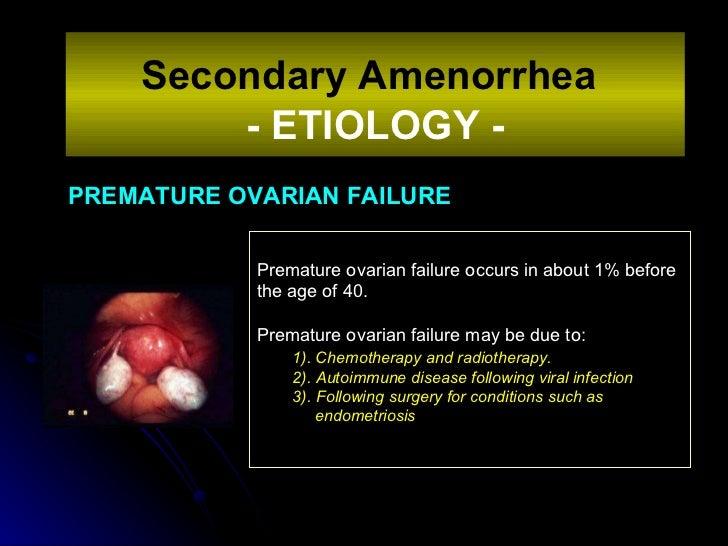PREMATURE OVARIAN FAILURE Secondary Amenorrhea   - ETIOLOGY - Premature ovarian failure occurs in about 1% before the age ...