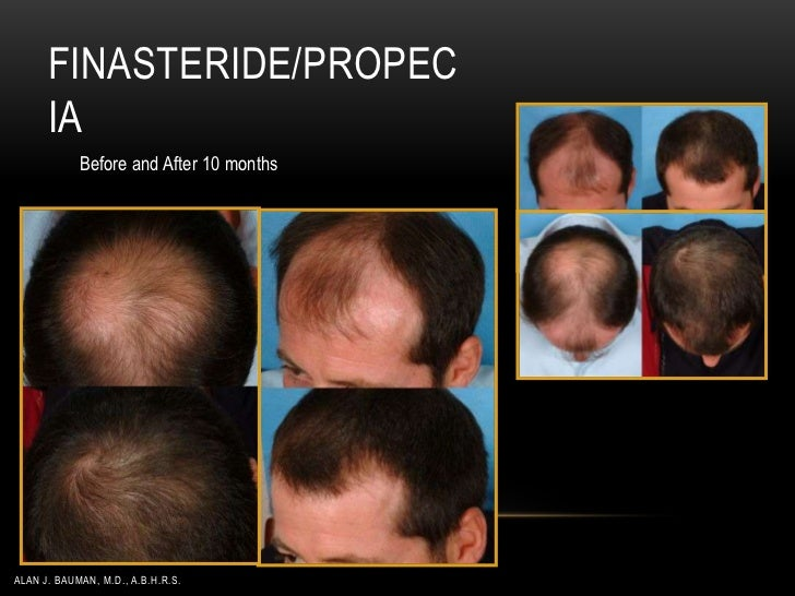 Hair Loss Management AHLC Dr. Alan J. Bauman 05-2012
