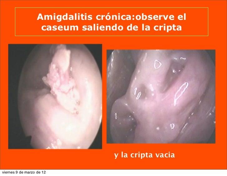 Amigdalitis pultacea