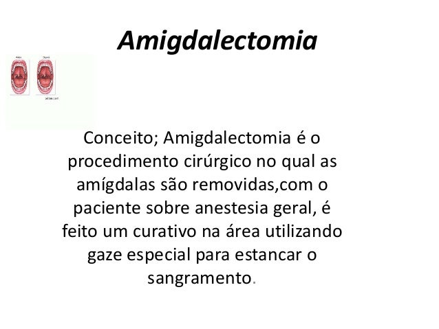 Amigdalectomia  Conceito; Amigdalectomia é o  procedimento cirúrgico no qual as  amígdalas são removidas,com o  paciente s...