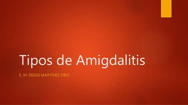 Tipos de Amigdalitis E. M. DIEGO MARTÍNEZ DÍAZ