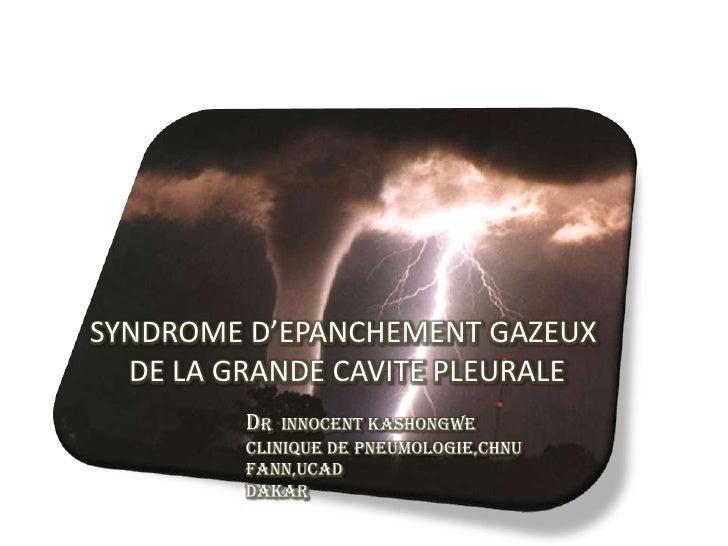 SYNDROME D'EPANCHEMENT GAZEUX  DE LA GRANDE CAVITE PLEURALE         Dr  innocent kashongwe         Clinique de Pneumologie...