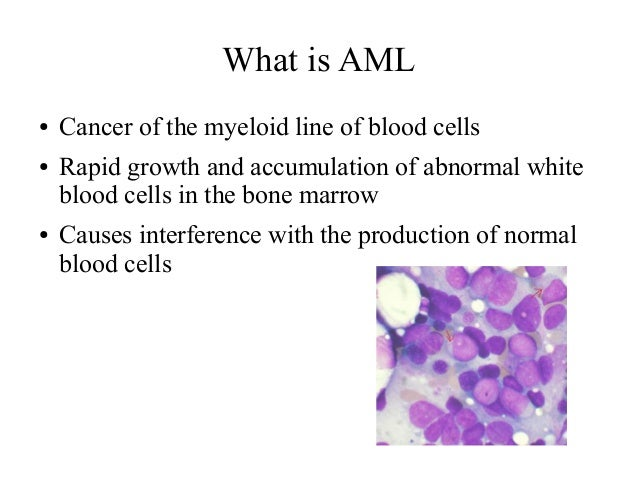 acute myeloid leukemia causes and treatment strategies Acute myeloid leukemia (aml) is a cancer that affects the blood and bone marrowconditions are generally called acute when they develop quickly and have an aggressive course.
