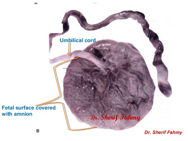 Amnion & Umbilical Cord (General Embryology)