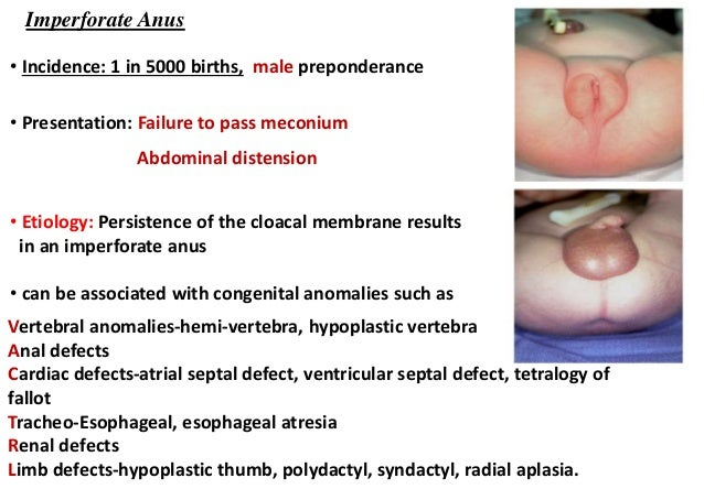 Anal atresia long term issues