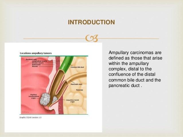 Ampullary Carcinoma