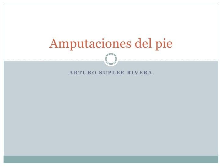 Arturo suplee rivera<br />Amputaciones del pie<br />