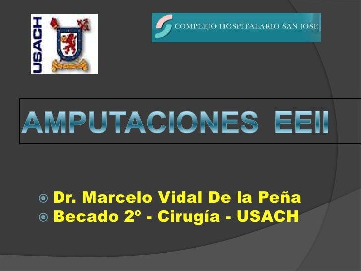 AMPUTACIONES EEII<br />Dr. Marcelo Vidal De la Peña<br />Becado 2º - Cirugía - USACH<br />