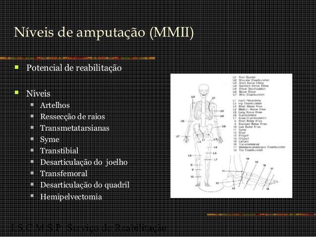 I.S.C.M.S.P. Serviço de Reabilitação Níveis de amputação (MMII)  Potencial de reabilitação  Níveis  Artelhos  Ressecçã...