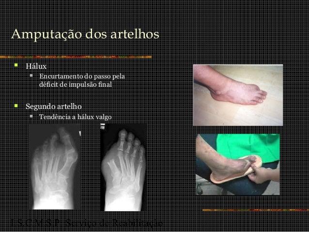 I.S.C.M.S.P. Serviço de Reabilitação Amputação dos artelhos  Hálux  Encurtamento do passo pela déficit de impulsão final...