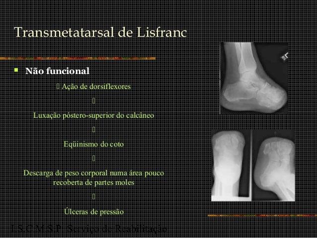 I.S.C.M.S.P. Serviço de Reabilitação Transmetatarsal de Lisfranc  Não funcional  Ação de dorsiflexores  Luxação póstero...