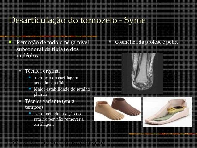 I.S.C.M.S.P. Serviço de Reabilitação Desarticulação do tornozelo - Syme  Remoção de todo o pé (a nível subcondral da tíbi...