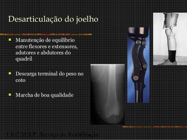 I.S.C.M.S.P. Serviço de Reabilitação Desarticulação do joelho  Manutenção de equilíbrio entre flexores e extensores, adut...