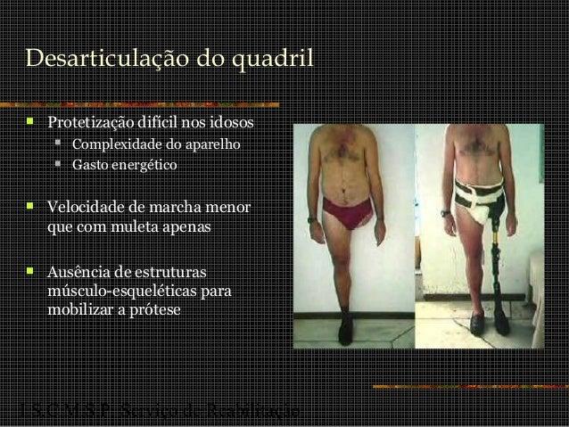 I.S.C.M.S.P. Serviço de Reabilitação Desarticulação do quadril  Protetização difícil nos idosos  Complexidade do aparelh...