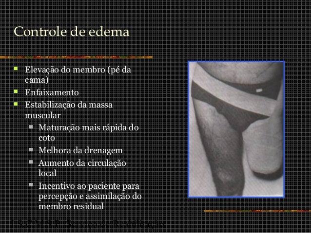 I.S.C.M.S.P. Serviço de Reabilitação Controle de edema  Elevação do membro (pé da cama)  Enfaixamento  Estabilização da...