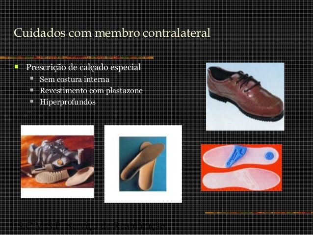 I.S.C.M.S.P. Serviço de Reabilitação Cuidados com membro contralateral  Prescrição de calçado especial  Sem costura inte...