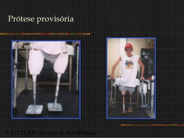 I.S.C.M.S.P. Serviço de Reabilitação Prótese provisória