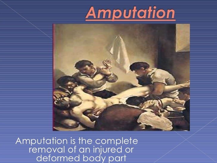 Amputation is the complete removal of an injured or deformed body part