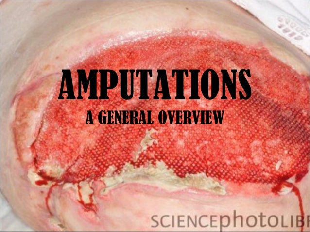 AMPUTATIONS A GENERAL OVERVIEW