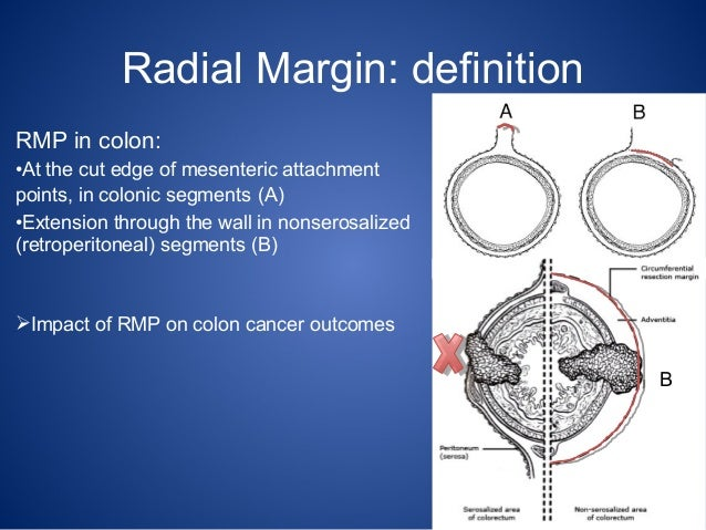 Radial margin positivity as a poor prognostic factor for colon cancer radial margin definition ccuart Images