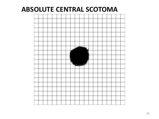 picture regarding Printable Amsler Grid known as Amsler grid chart