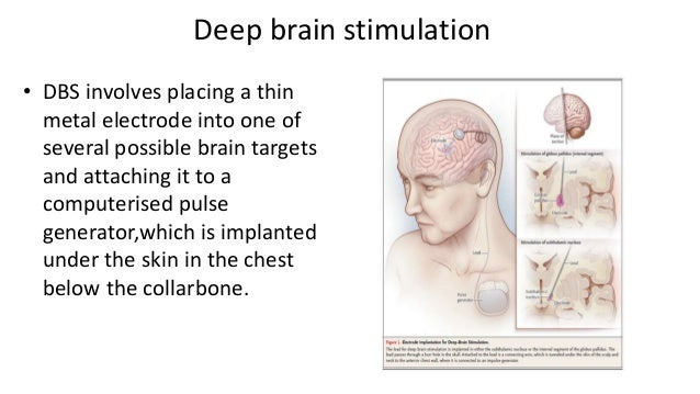 Herbal remedies for head injuries image 2