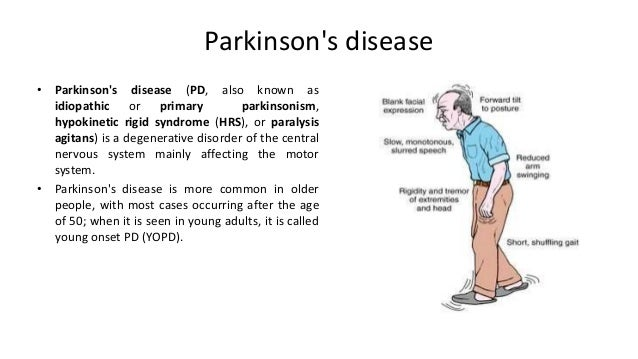 research papers on parkinsons disease Parkinson's disease research parkinson's disease research parkinson's disease is a chronic and progressive neurological condition characterised by symptoms of motor tremor, motor rigidity, and/or problems with balance.