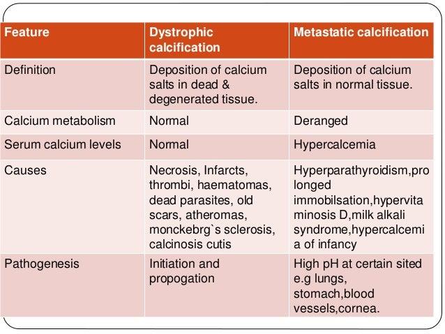 Amyloidosis and pathological calcification Multiple Myeloma