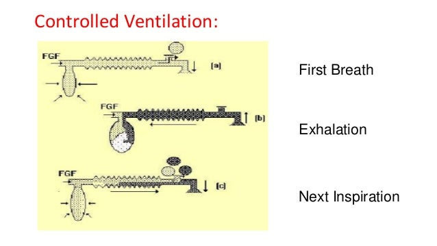 Controlled Ventilation: First Breath Exhalation Next Inspiration