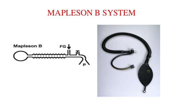 MAPLESON B SYSTEM