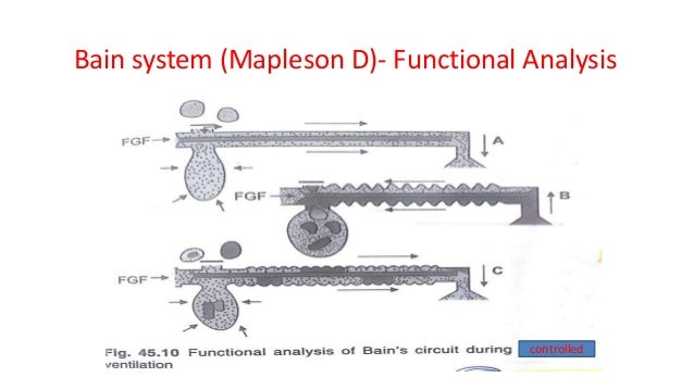 Bain system (Mapleson D)- Functional Analysis controlled