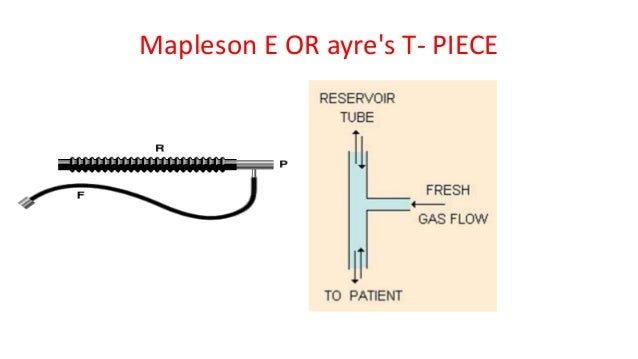 Mapleson E OR ayre's T- PIECE
