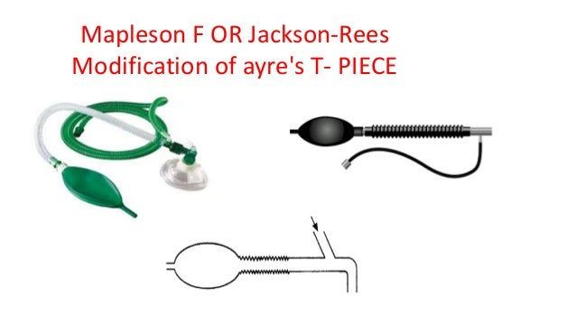 Mapleson F OR Jackson-Rees Modification of ayre's T- PIECE