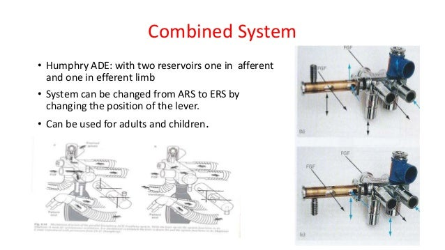 Combined System • Humphry ADE: with two reservoirs one in afferent and one in efferent limb • System can be changed from A...