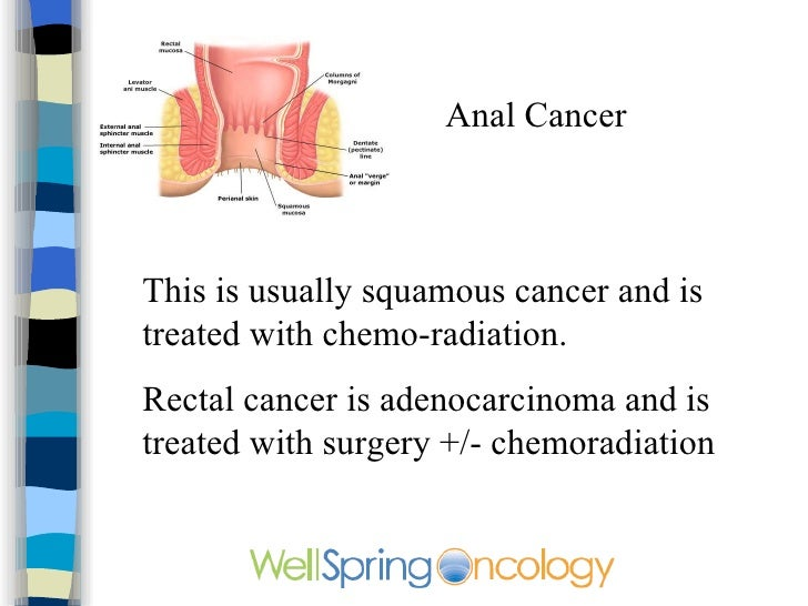 Treatment for anal cancer