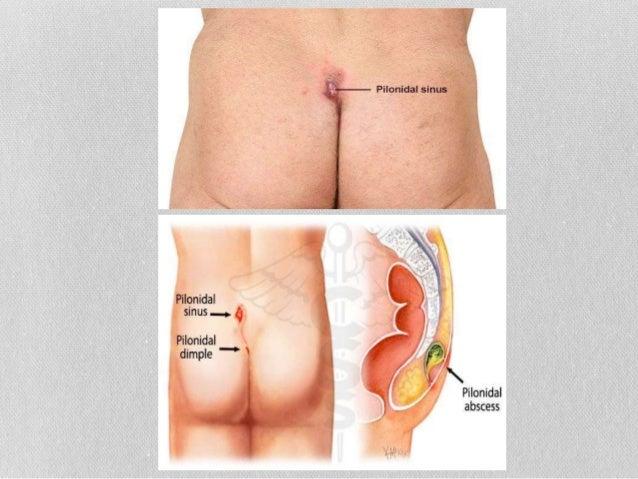 Anal surgery
