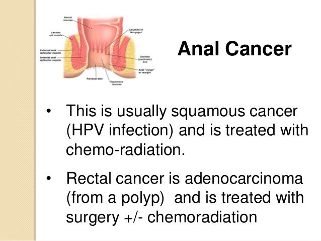 anal-cancer-treatment