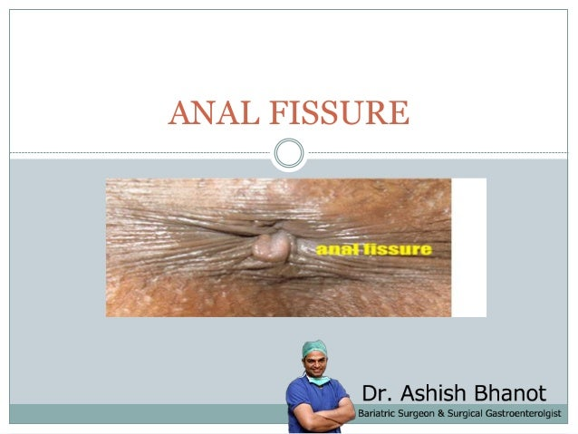 Was and anal fissure treatments that necessary