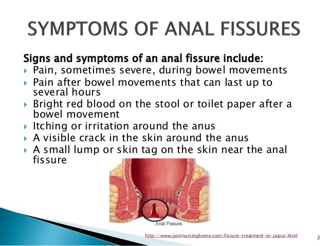 anal-fissures-images