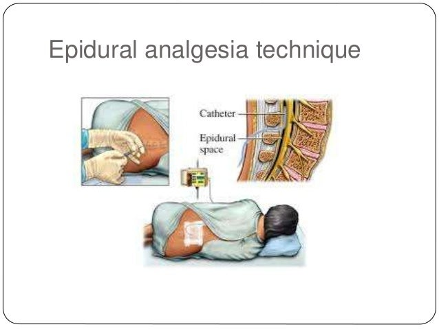 epidural morphine and steroid paste complications