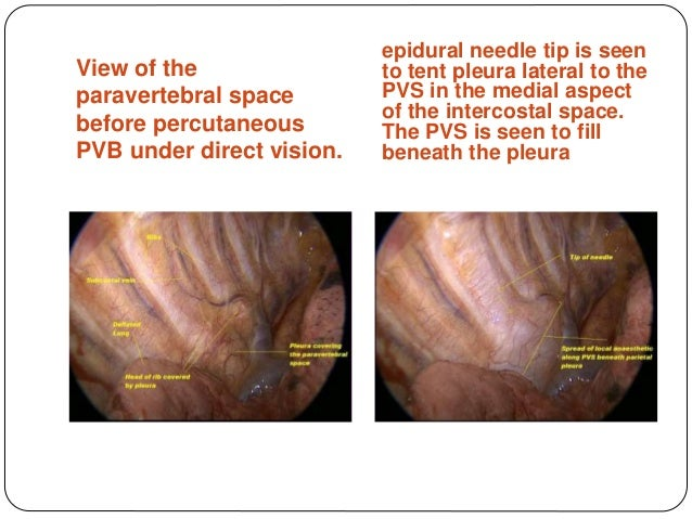 Anatomy of paravertebral space and technique of block; 27. & Analgesia in thoracic surgery.