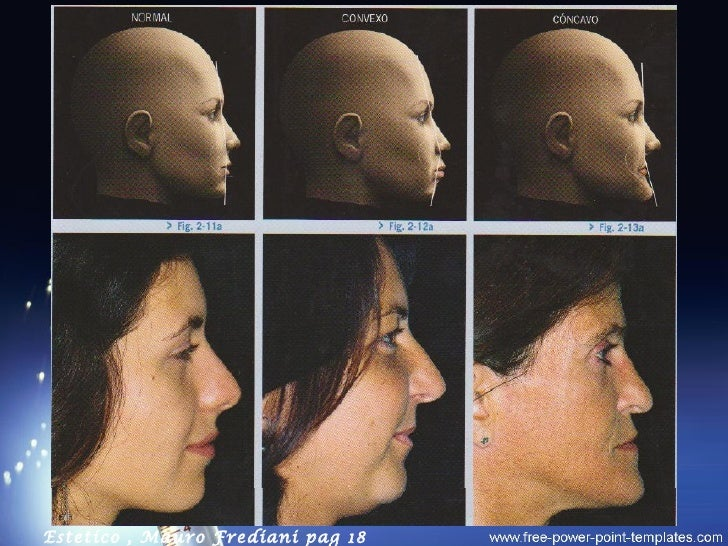 perfiles adulto facial