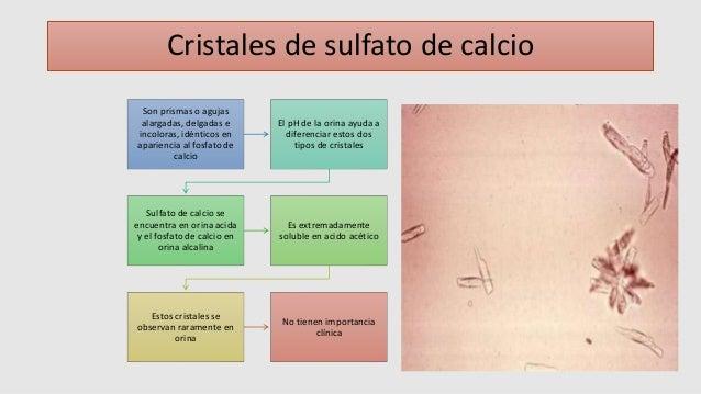Analisis microscopico del sedimento urinario - Tipos de cristales ...