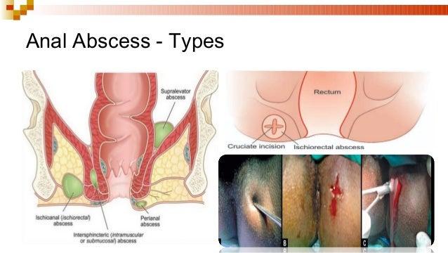 Para anal abscess