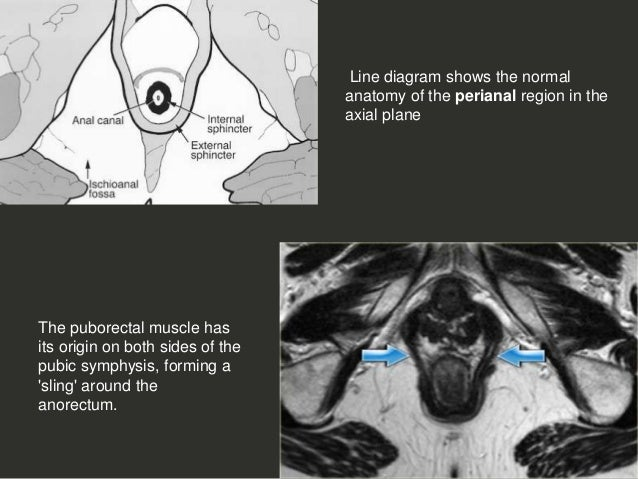 Anal Perianal Imaging Part 1 Ct Mri Anatomy Dr Ahmed Esawy
